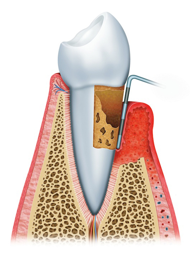 Advanced Periodontitis example
